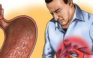 Лечение эрозии желудка народными средствами