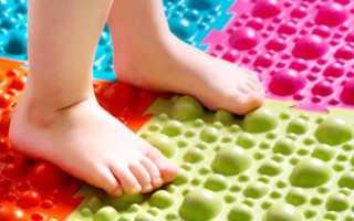 Упражнения для профилактики и лечения плоскостопия у детей