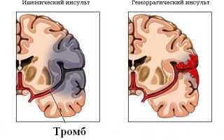 Йоготерапия при лечении инсульта
