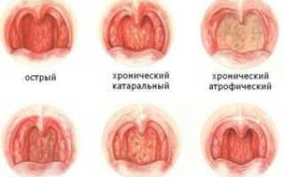 Народные средства лечения фарингита