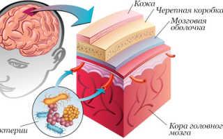 Йоготерапия при лечении менингита