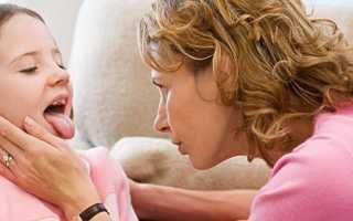 Ангина. лечение народными средствами