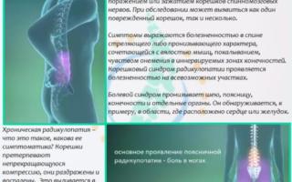 Гомеопатия при лечении радикулита