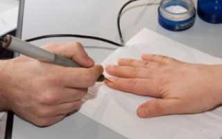Биорезонансные методы лечения болезней нервной системы