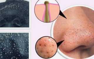 Маска от угрей с желатином и активированным углём: действие на кожу