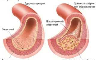 Чрд и чрт при лечении атеросклероза сосудов головного мозга