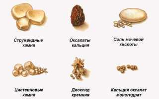Народные средства от камней в почках