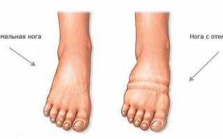 Отекают ноги, народная медицина