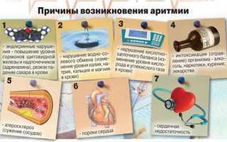 Народные средства лечения аритмии