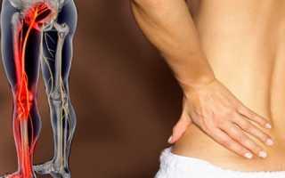 Лечение седалищного нерва народными средствами