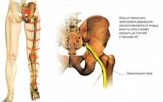 Минералотерапия при лечении радикулита